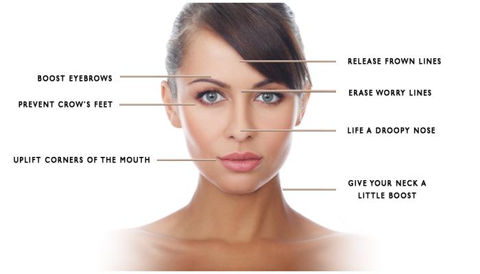The Skiny on Botox