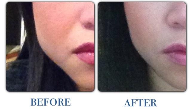 Botox square jaw