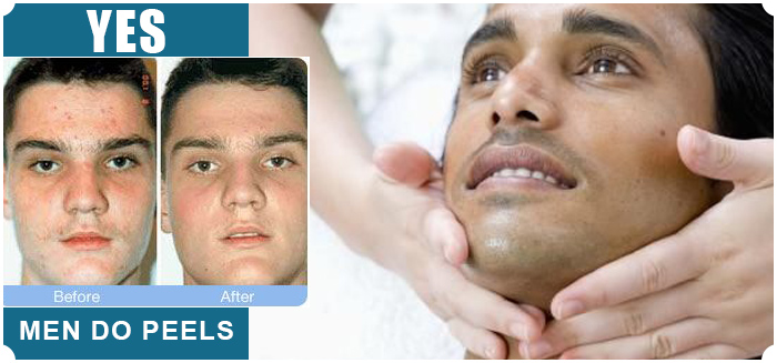 Chemical Peels for Men