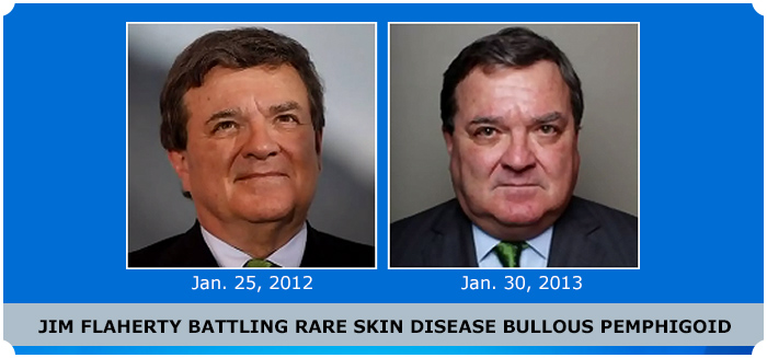 Jim Flaherty's Skin Woe
