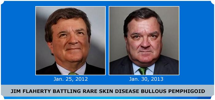 Jim Flaherty's Skin Woe