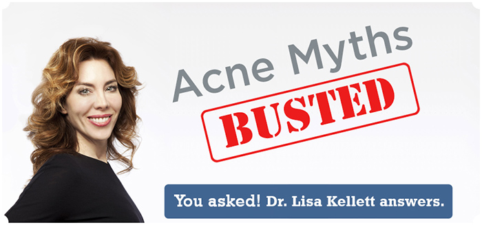 4 Acne Myths Busted