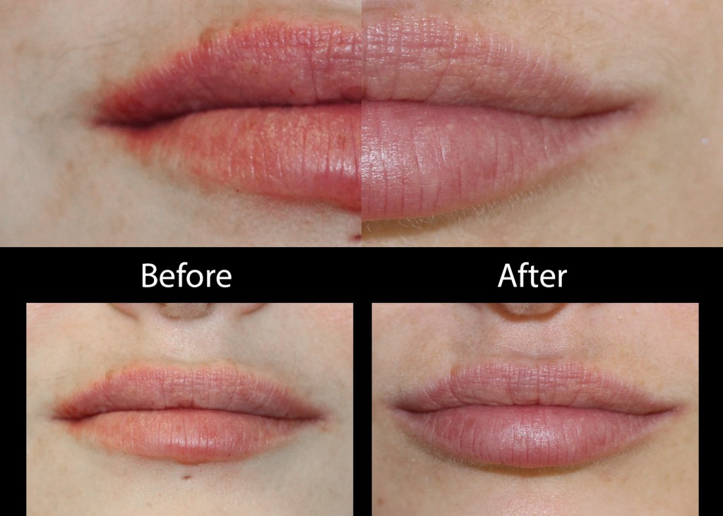 Lip Injections - The Skiny