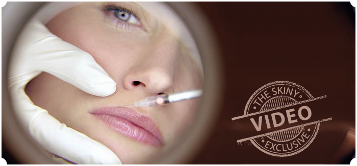 Juvederm Volbella - The Skiny