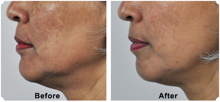 New Melasma Treatment