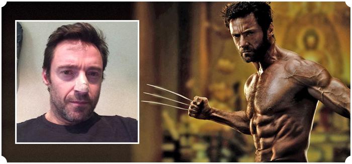 Hugh's Skin Cancer Scare