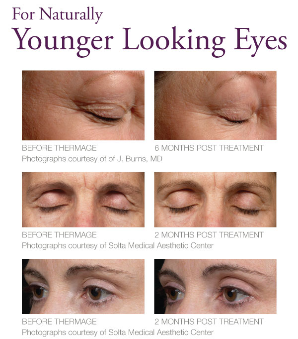 Thermage For Eyes The Skiny