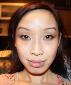 lip-mole-before