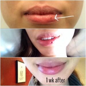 Lip Mole Progress