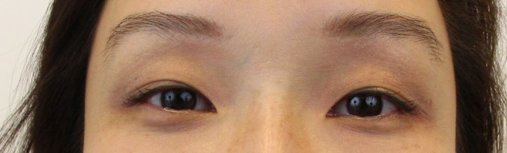 thermage-1-day-after
