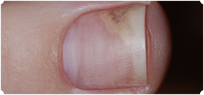 Nail Fungus - The Skiny
