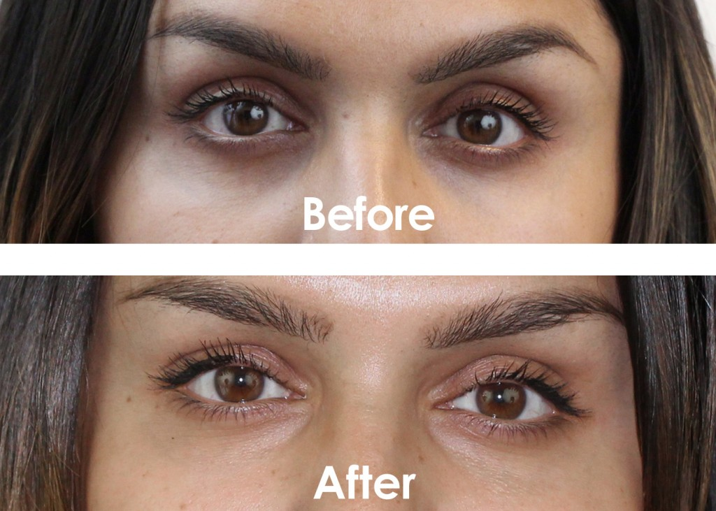 Undereye_Before_After_5_7_labeled