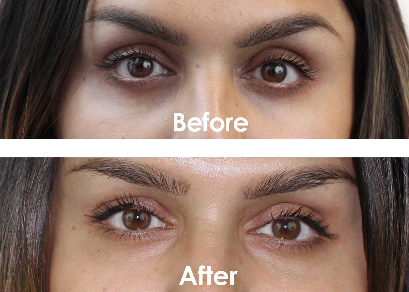 Dark Under Eye Circles - The Skiny