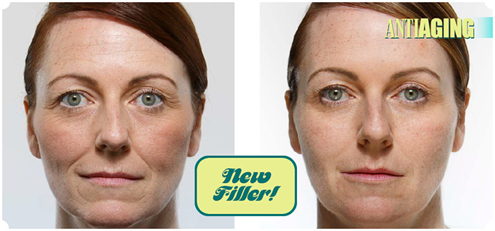 Juvéderm Volift for Smile Lines - The Skiny