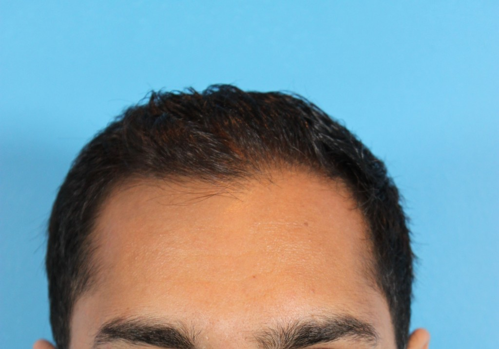 Before hair transplant - Dr Jamil Asaria