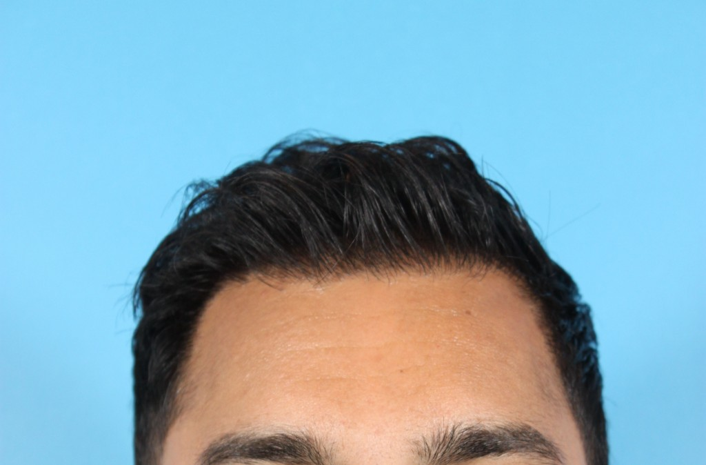 After hair transplant - Dr Jamil Asaria