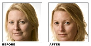 Intraceuticals_before_after-300x153