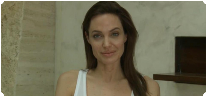 Angelina has chickenpox