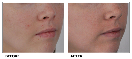 micro-laser-peel-Before-After-One-Toronto-2010