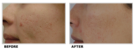 profractional-acne-scarring-laser-resurfacing-before-after-2010-2