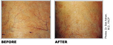 sclerotherapy-leg-vein-before-after-toronto