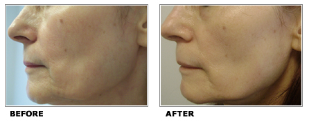 thermage-treatment-before-after_2010_1