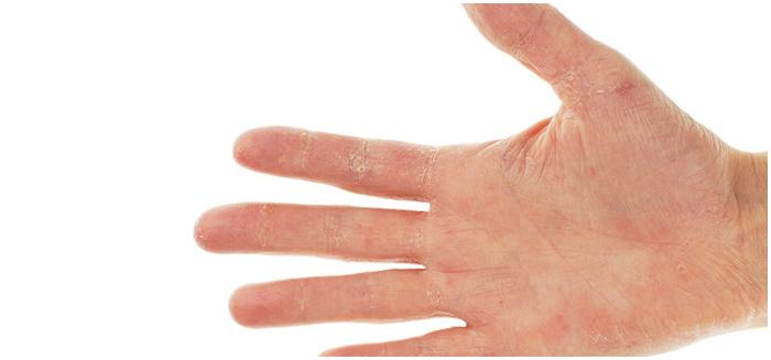 Easing Hand Eczema