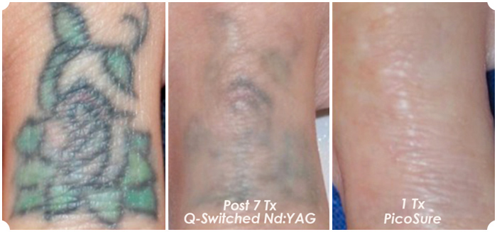 Picosure vs q switch the skiny for I want to remove my tattoo at home