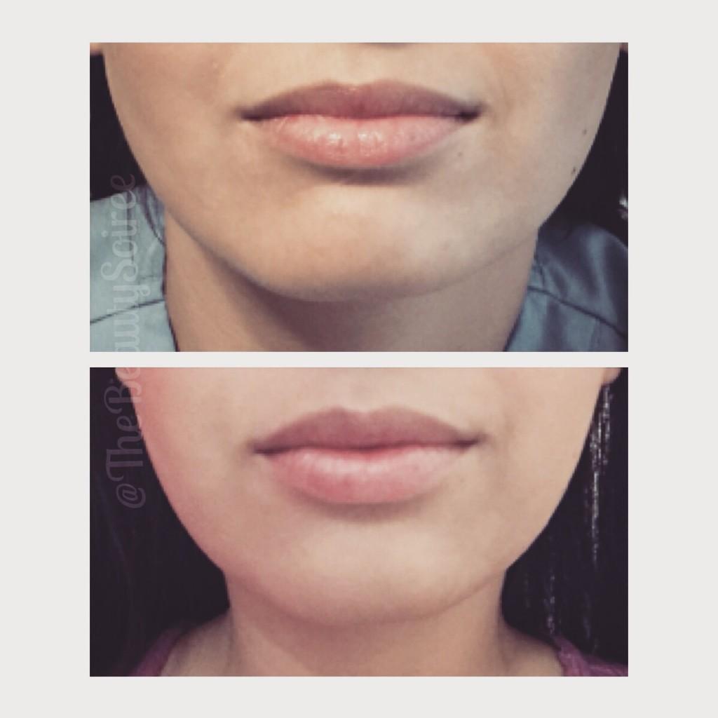 Botox jawline