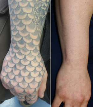 Is Laser Tattoo Removal Really Safe? - The Skiny