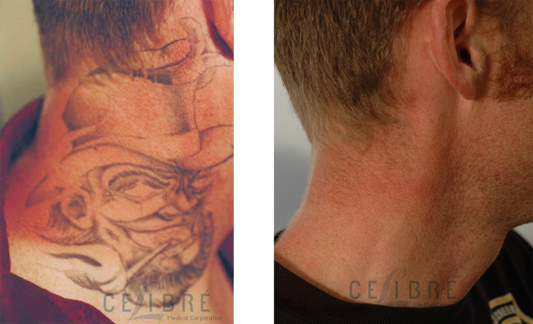 Is laser tattoo removal really safe the skiny for Laser remove tattoo price