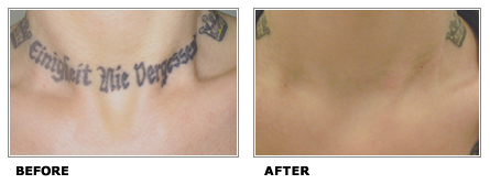 dlk-tattoo-removal-laser-before-after-toronto-2010