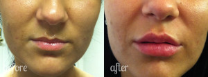 Copyright http://www.antiwrinklelondon.co.uk/dermal-fillers.php