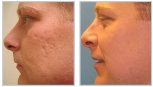 How to get rid of acne scars for good profractional laser before after ccuart Choice Image