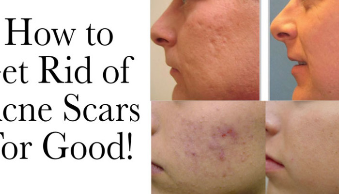 Get Rid of Acne Scars!