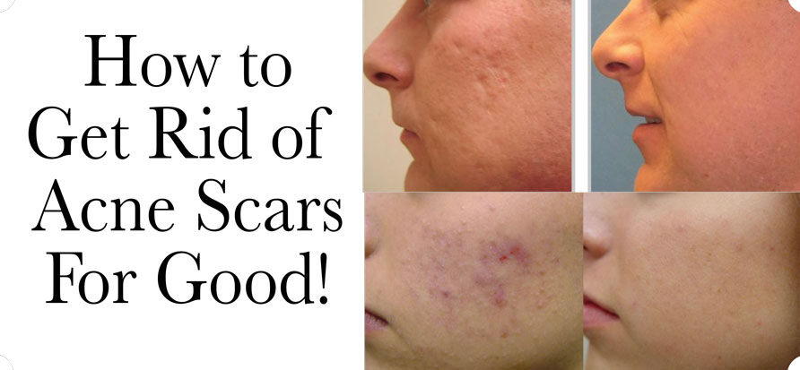 Natural Products To Get Rid Of Scars