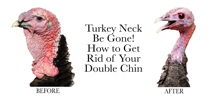 Turkey Neck Be Gone!