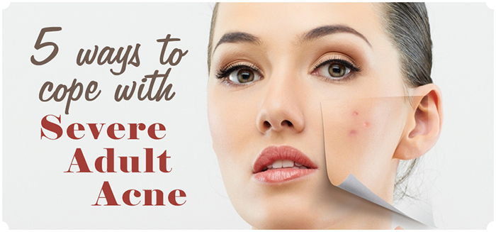 Coping With Adult Acne?