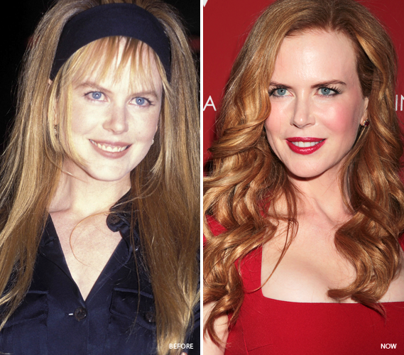 4822-cfakepathnicole-kidman-natural-looking-celebrities