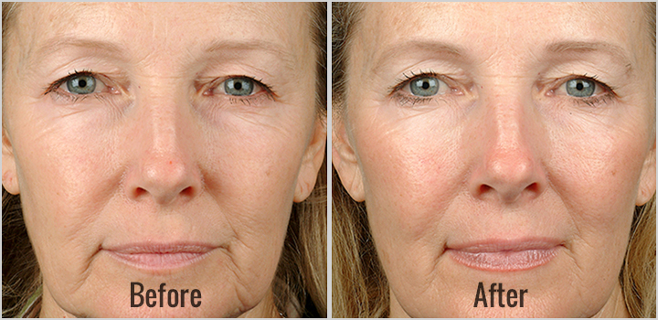 Thermage-Before-After-1