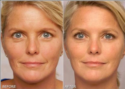 retinol-cream-reduces-fine-lines-before-and-after