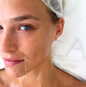 Bar Rafaeli is a fan of cosmetic acupuncture